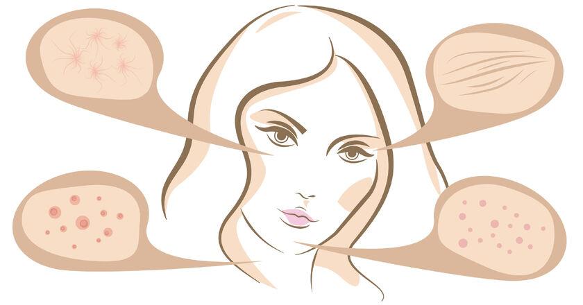Osoba z ropnym zapleniem mieszka włosowego