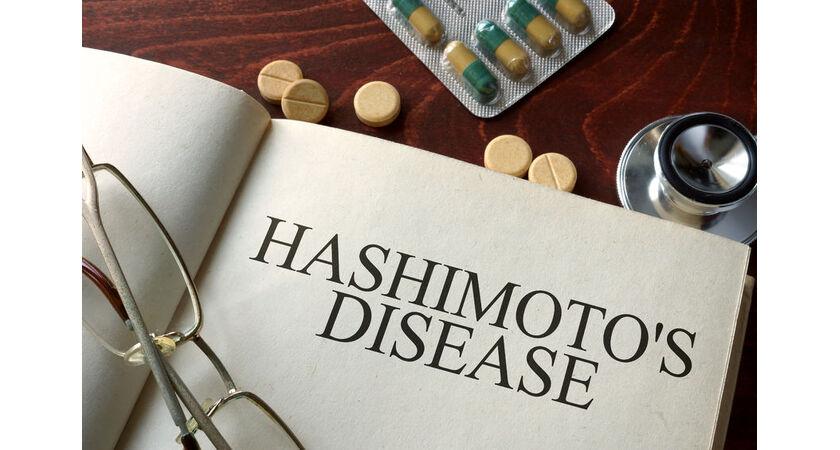 Produkty w diecie na Hashimoto