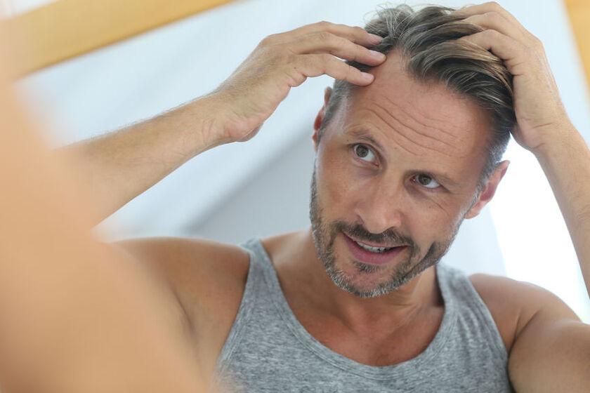 Mężczyzna cierpiący na łysienie androgenowe