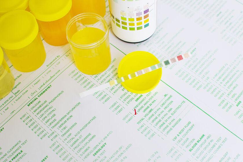 Próba moczu w badaniu azotynów