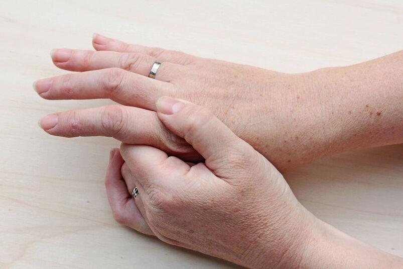Dłonie człowieka z brązowymi brodawkami