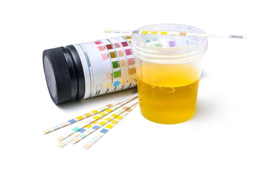 Próbka moczu do badania escherichia coli
