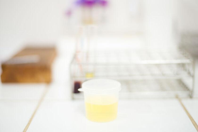 Próbka moczu do badania nabłonków płaskich