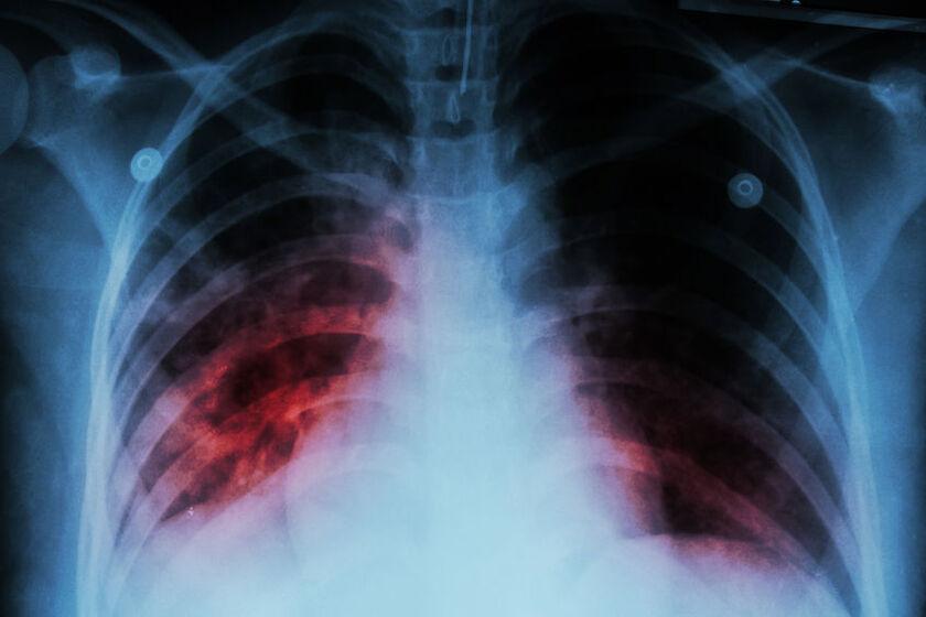Zdjęcie RTG płuc