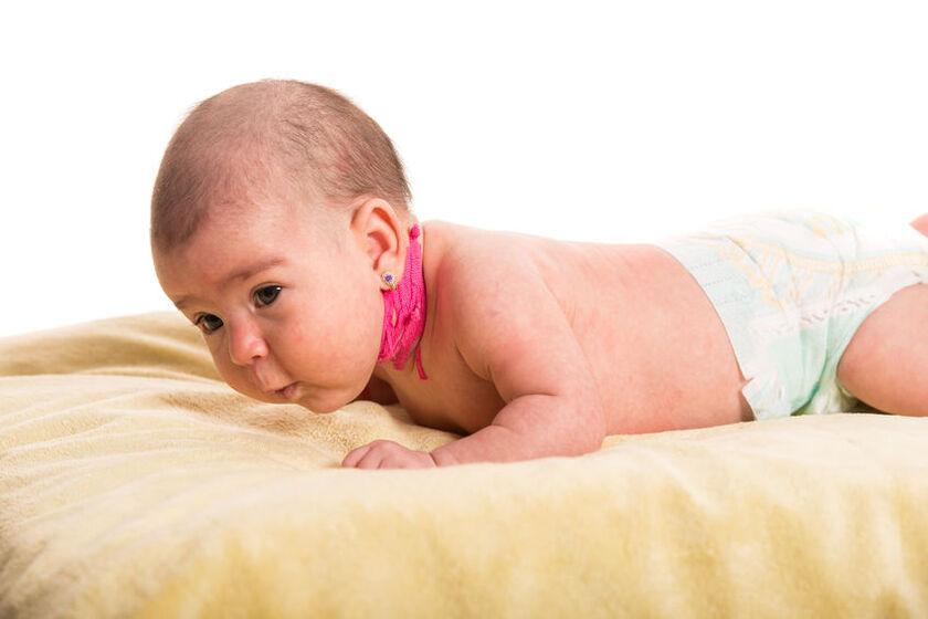 Dziecko z chorobą kręczu szyji