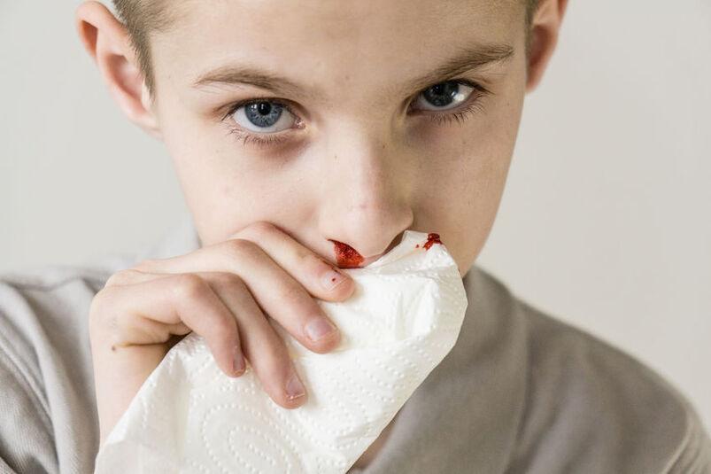 Krew cieknąca z nosa