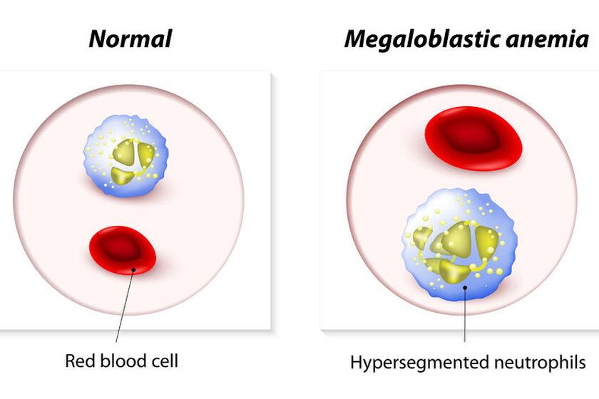 Hemoglobina, czyli czerwony barwnik krwi