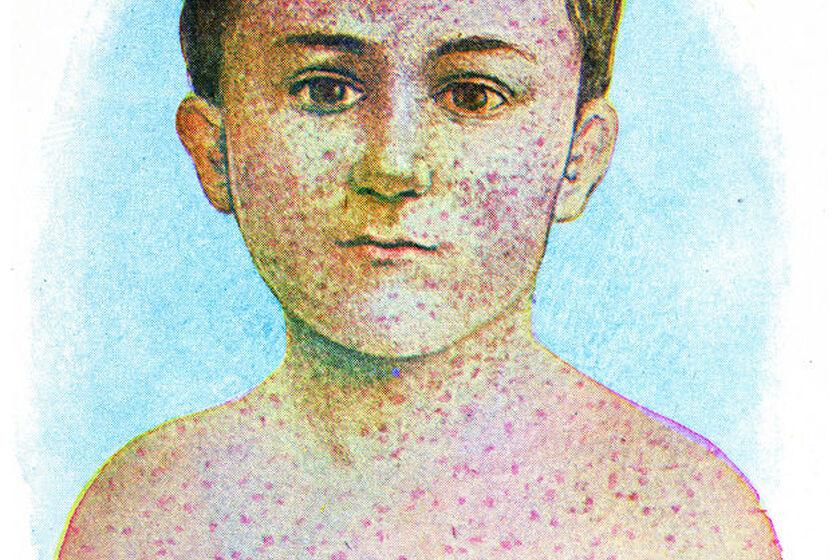 Dziecko z krostami na ciele