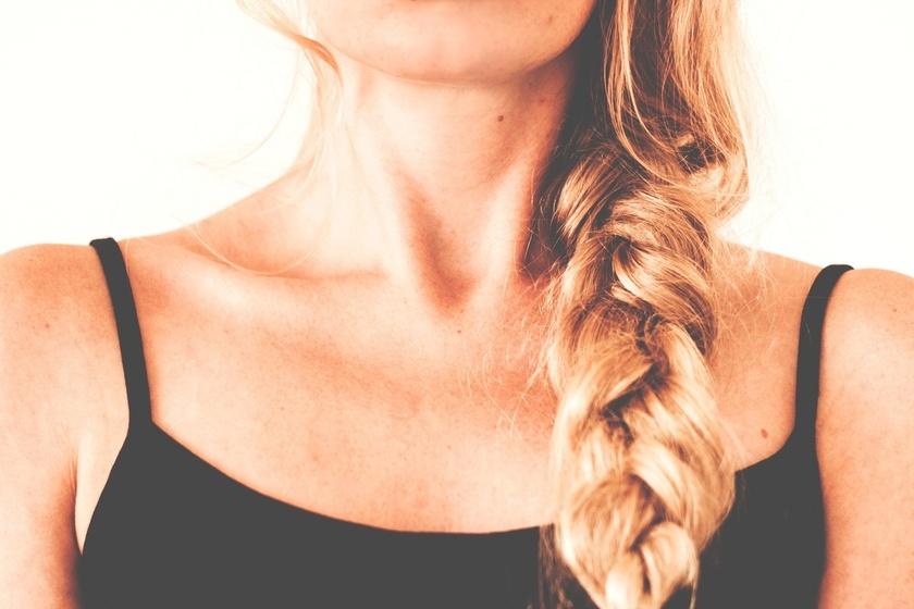 Kobieta z problemem nadmiernego wypadania włosów