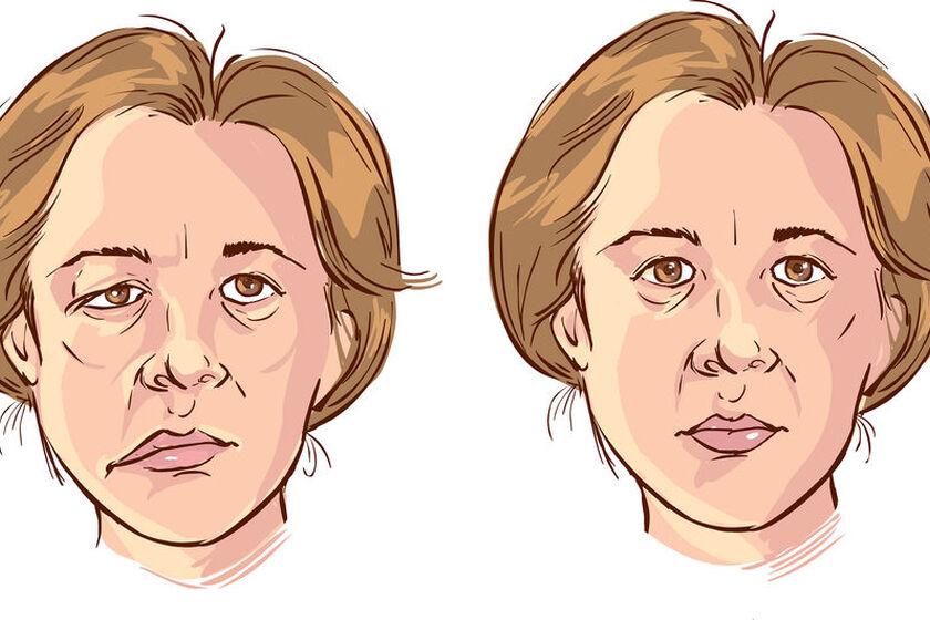 Człowiek z porażeniem nerwu twarzowego