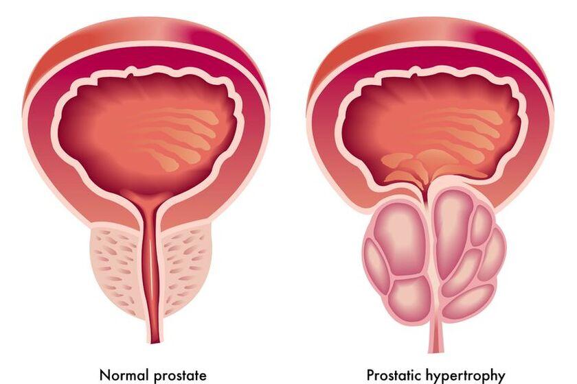 Prostata pokazana na przekroju