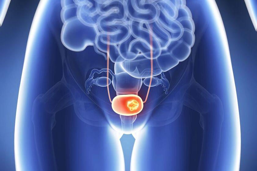 Choroba nowotworowa układu moczowego