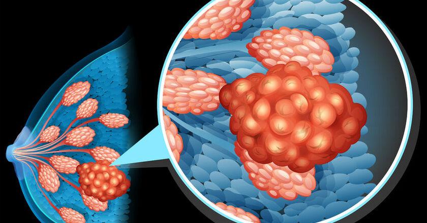 Rak piersi to coraz częstsza choroba występująca wśród kobiet.