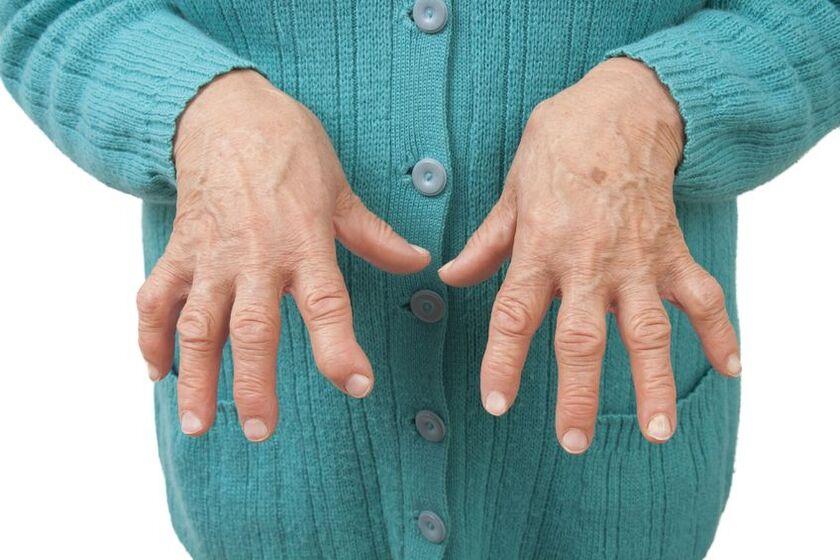 Pacjent z reumatoidalnym zapaleniem stawów