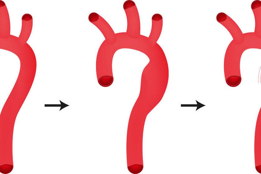 Nadmierne poszerzenie aorty brzusznej