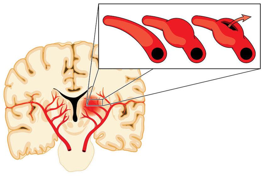 Tętniak w mózgu