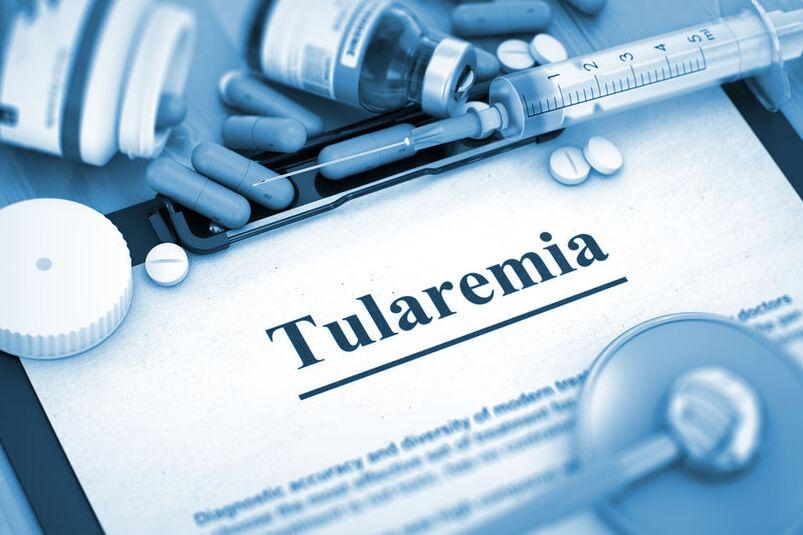 Diagnostyka tularemii