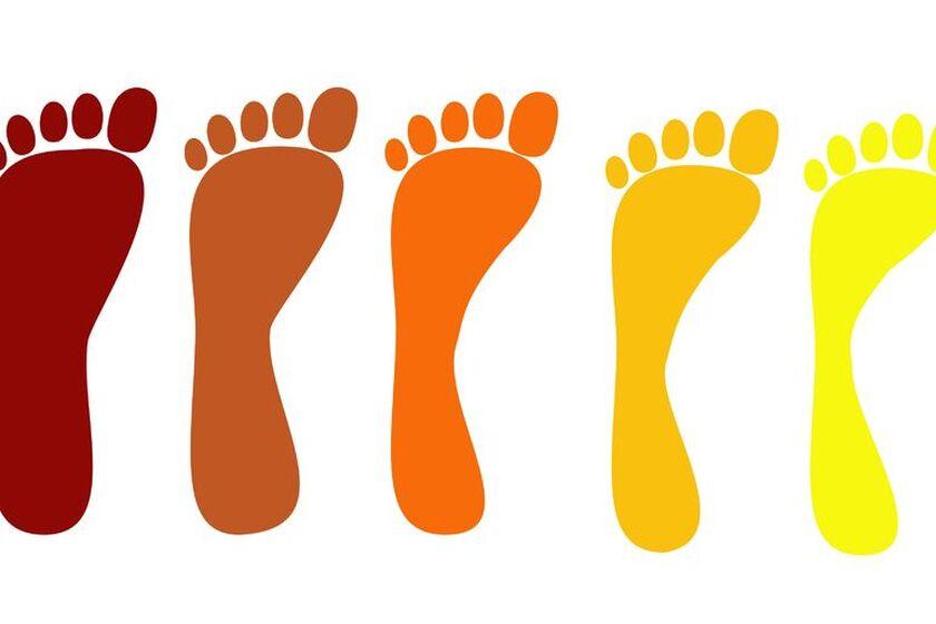 Osoba ze zdeformowanymi stopami