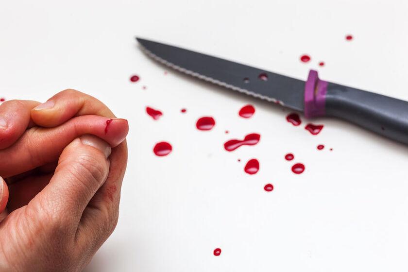 Problem z krzepnięciem krwi po krwotoku