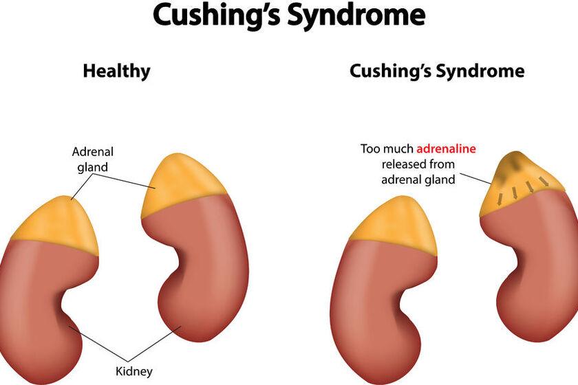 Syndrom zespołu Cushinga