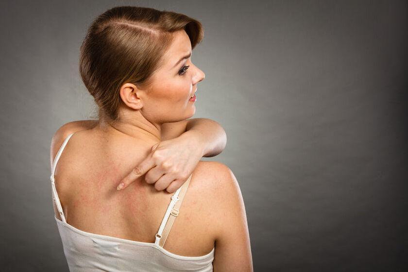 Kobieta z pokrzywką idiopatyczną