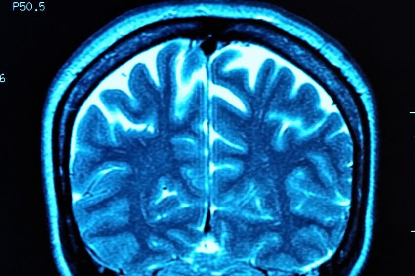 Wynik rezonansu magnetycznego mózgu