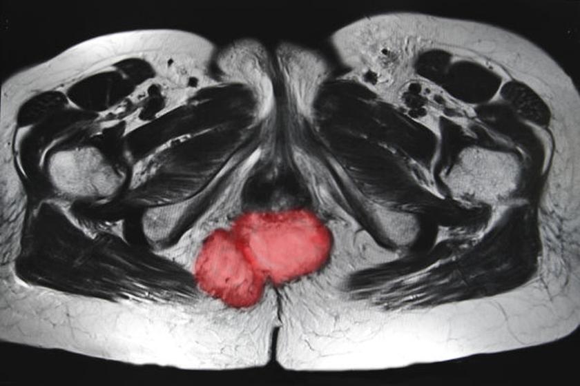 Diagnostyka raka odbytu