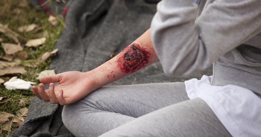 Opatrywanie po oparzeniu skóry