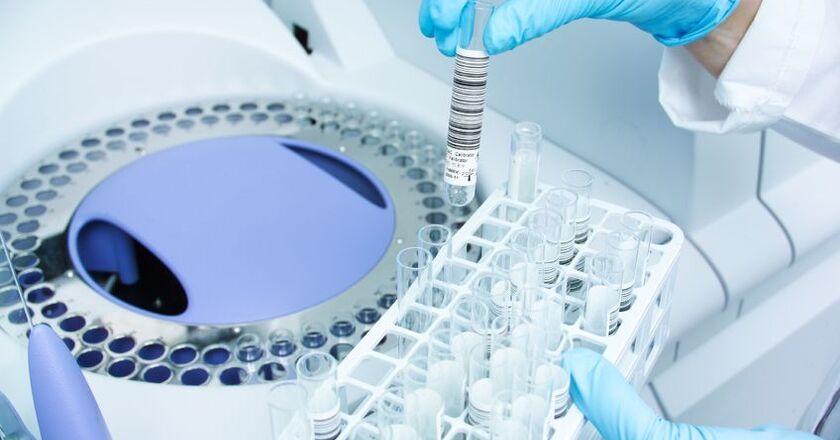 Próbka krwi do badania anty TPO