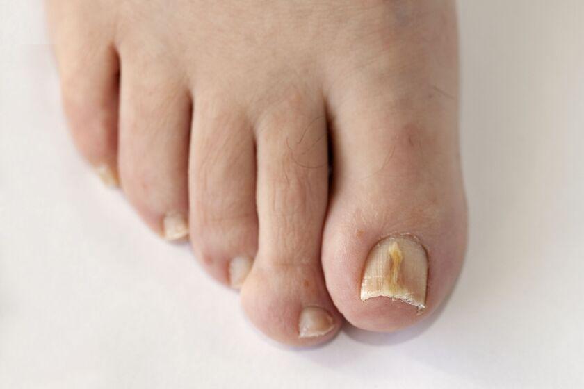 Żółte paznokcie u człowieka