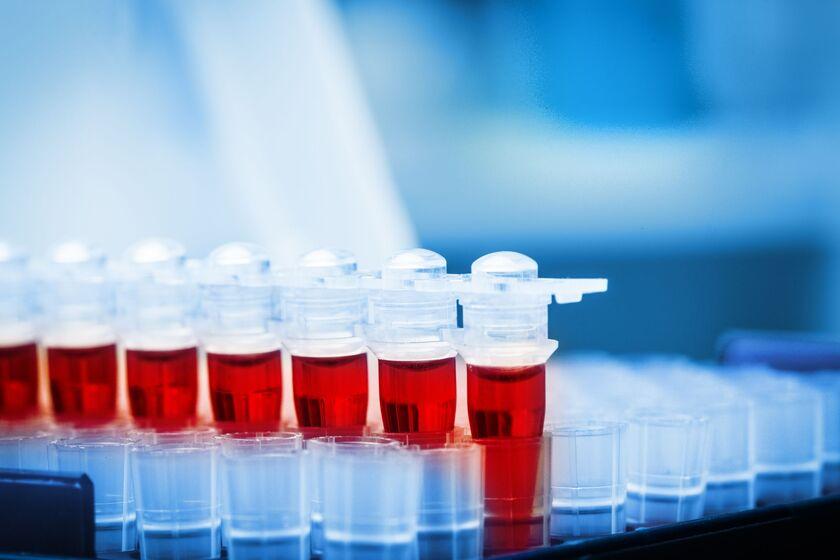 Próbka krwi do badania