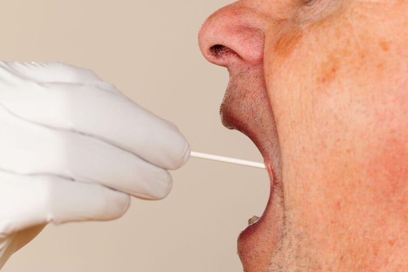 Osbowa poddawana badaniu mikrobiologicznemu