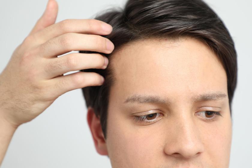 Mężczyzna dotykająca włosów