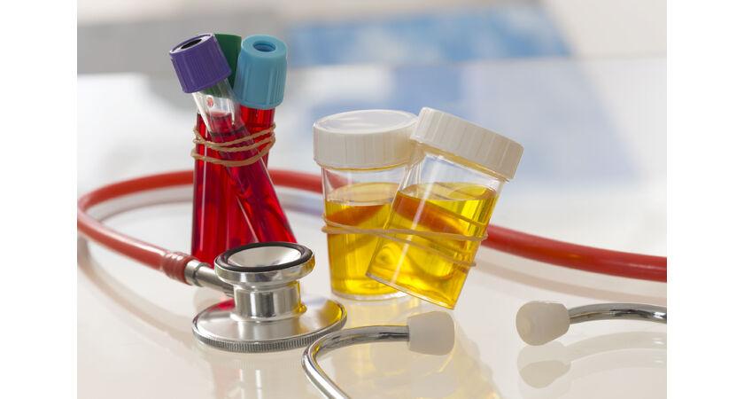 Próbki moczu oraz krwi