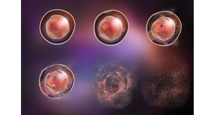 Śmierć komórki w organizmie wielokomórkowym