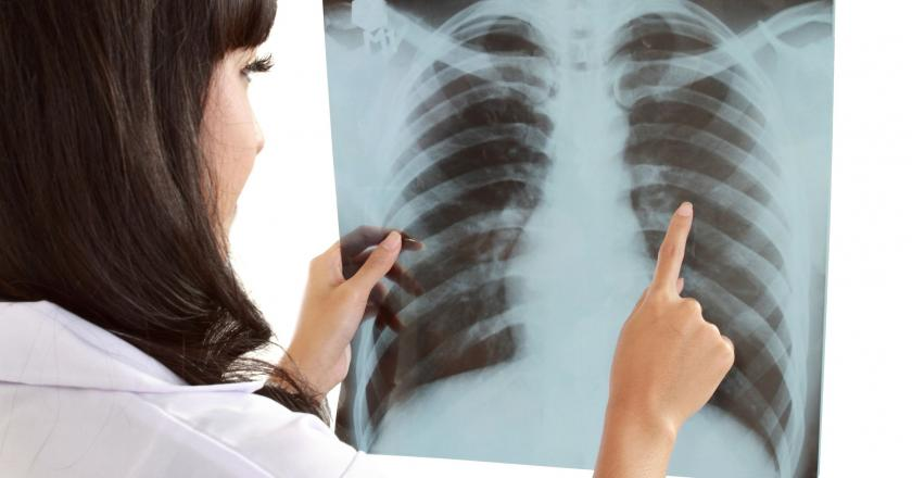 Chore płuca ze względu na wodę