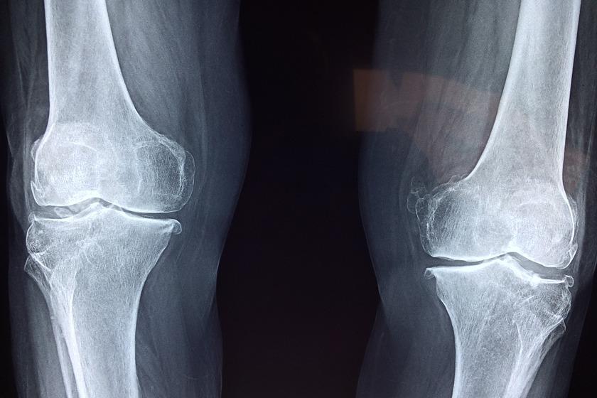 Zdjęcie RTG kości