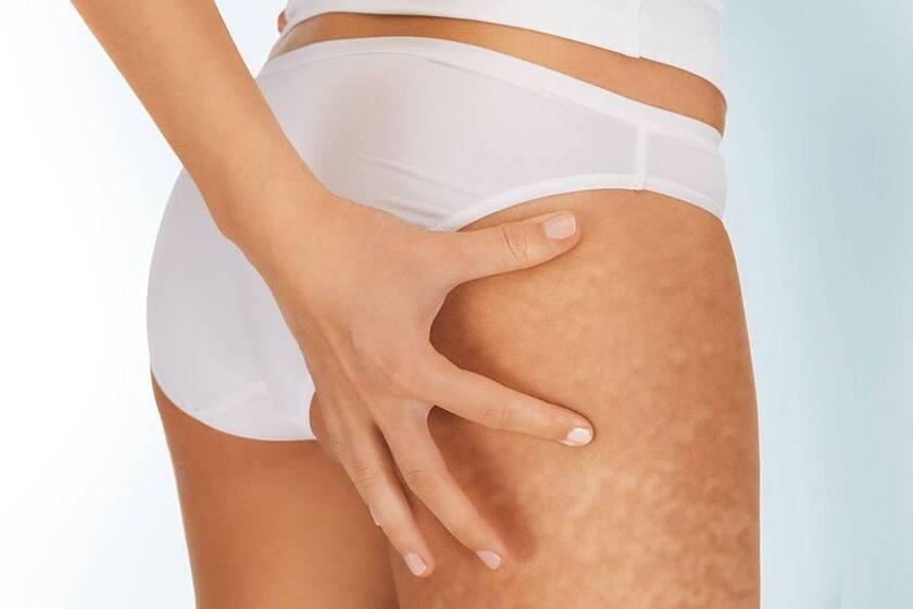 Pielęgnacja ciała po ciąży