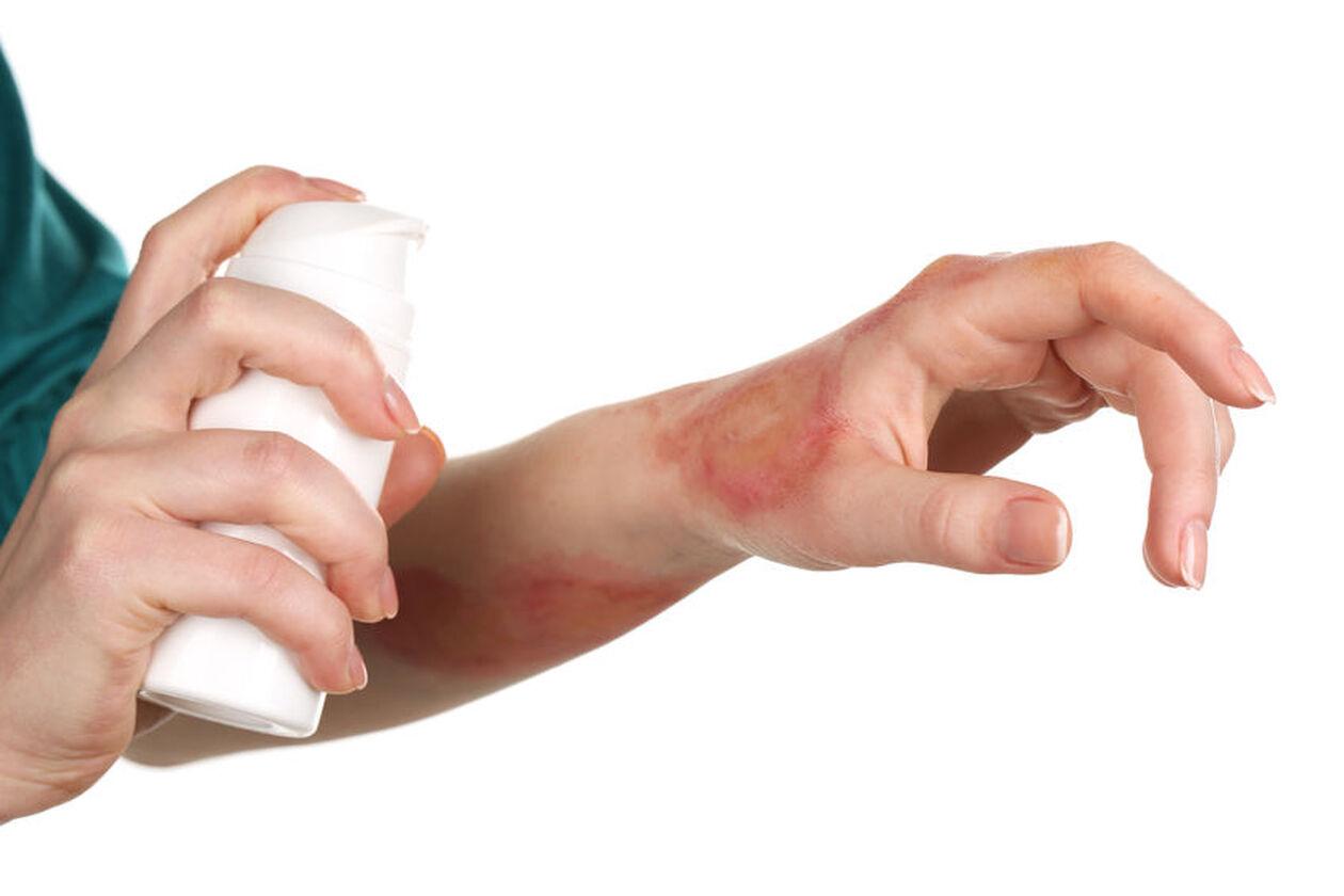Pacjent z odparzeniami w pachwinach