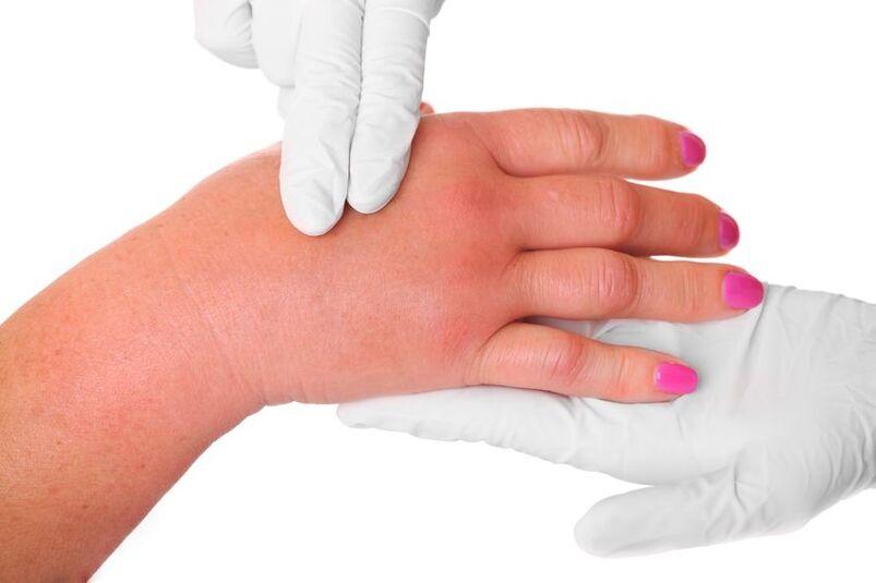 Badanie opuchniętych dłoni