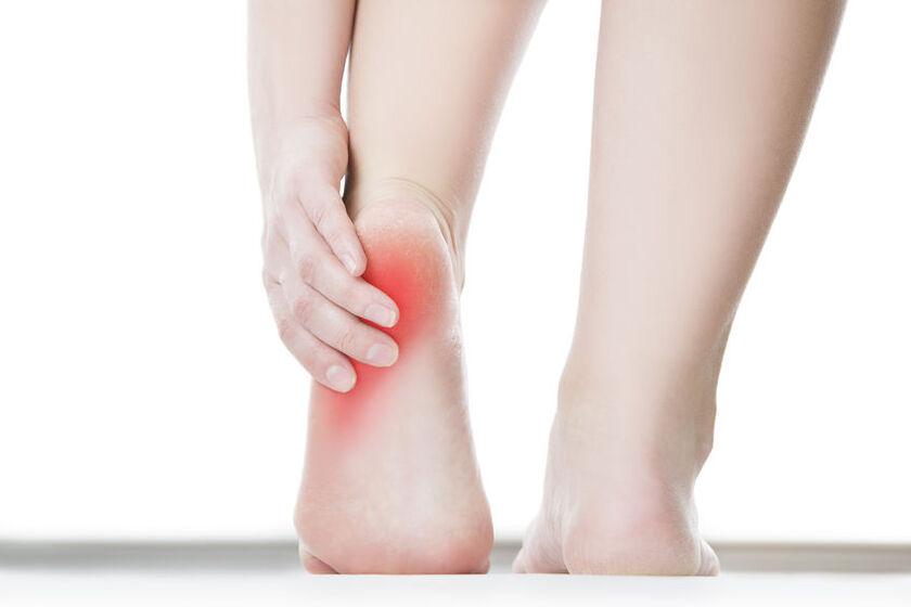 Kobietę boli pięta przy chodzeniu