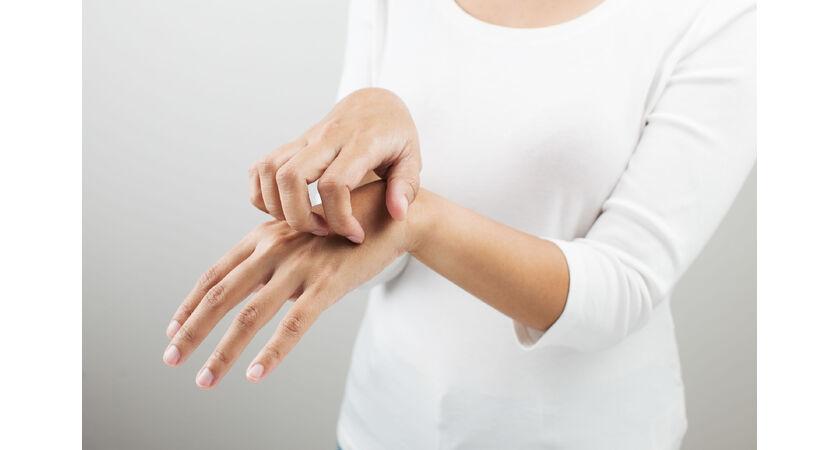 swędzenie skóry i stany zapalne
