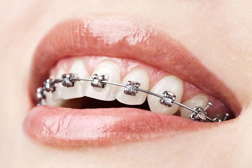 Cena aparatu na zęby