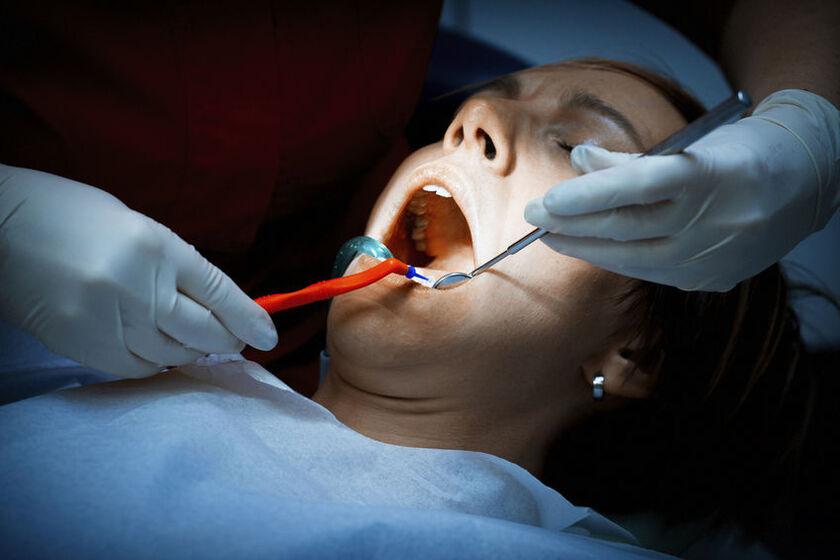 Leczenie ropnia zęba