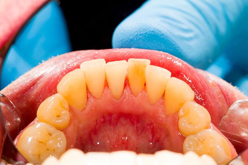 Skaling zębów